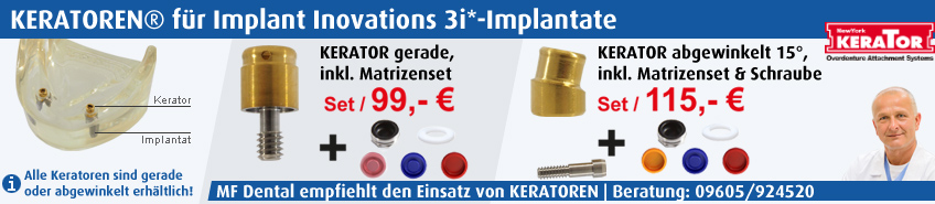 Implant Inovations 3i