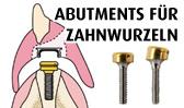 Abutments für Zahnwurzeln