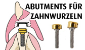 Abutments f�r Zahnwurzeln